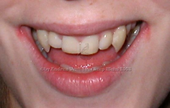 vampirzähne machen lassen